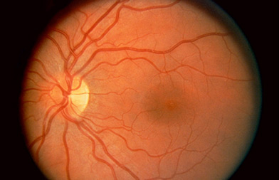 Degeneracion macular senil seca
